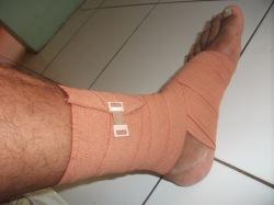 Sprain sedang, 36 jam gak bisa jalan, 40 di massage baru ok